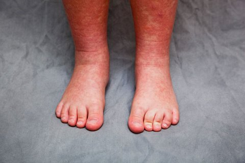 Rare inflammatory disease, possibly tied to COVID-19 ...